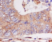 IHC staining of FFPE human colon cancer with E-Cadherin antibody. HIER: boil tissue sections in pH6, 10mM citrate buffer, for 10-20 min and allow to cool before testing.