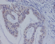 IHC staining of FFPE human ovarian cancer with BRAF antibody. HIER: boil tissue sections in pH6, 10mM citrate buffer, for 10-20 min and allow to cool before testing.