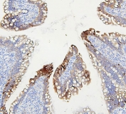 IHC staining of FFPE rat intestine with ABCB5 antibody. HIER: boil tissue sections in pH6, 10mM citrate buffer, for 20 min and allow to cool before testing.
