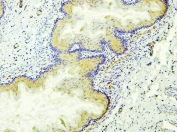 IHC staining of FFPE rat stomach with ALDH1A1 antibody. HIER: boil tissue sections in pH6, 10mM citrate buffer, for 20 min and allow to cool before testing.