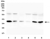 Western blot testing of human 1) A375, 2) Jurkat, 3) A549, 4) A431, 5) HepG2 and 6) K562 cell lysate with Orai1 antibody. Predicted molecular weight: 33-50 kDa depending on glycosylation level.