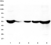 Western blot testing of human 1) HepG2, 2) placenta, 3) HEK293, 4) SHG-44 and 5) ThP-1 lysate with ALDH2 antibody. Predicted molecular weight ~56 kDa.