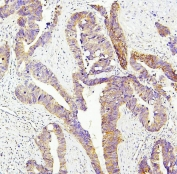 IHC staining of FFPE human intestinal cancer with SIRT1 antibody. HIER: boil tissue sections in pH6, 10mM citrate buffer, for 20 min and allow to cool before testing.