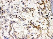IHC staining of FFPE human liver cancer with APOL1 antibody. HIER: boil tissue sections in pH6, 10mM citrate buffer, for 20 min and allow to cool before testing.