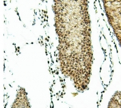 IHC staining of FFPE rat testis with ATRX antibody. HIER: boil tissue sections in pH6, 10mM citrate buffer, for 20 min and allow to cool before testing.