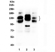 Western blot testing of 1) rat brain, 2) rat C6 and 3) mouse brain lysate with NCAM1 antibody. Predicted molecular weight: ~110 kDa (soluble fragment), ~120/125 kDa (GPI-anchored), 140/180 kDa (transmembrane isoforms).
