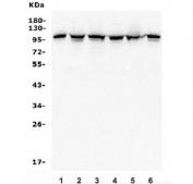 Western blot testing of human 1) HeLa, 2) HEK293, 3) U-2 OS, 4) U-87 MG, 5) rat PC-12 and 6) mouse NIH 3T3 lysate with Alpha 1 Catenin antibody. Predicted molecular weight ~102 kDa.