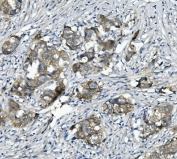 IHC staining of FFPE human breast cancer with Alpha 1 Catenin antibody. HIER: boil tissue sections in pH8 EDTA for 20 min and allow to cool before testing.