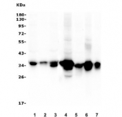 Western blot testing of human 1) HepG2, 2) HL-60, 3) ThP-1 and 4) rat liver, 5) rat RH35, 6) mouse liver and 7) mouse HEPA1-6 lysate with AKR1D1 antibody. Predicted molecular weight ~37 kDa.