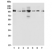 Western blot testing of 1) human K562, 2) human Raji, 3) rat C6, 4) mouse NIH 3T3, 5) human HepG2, 6) human A549 and 7) human ThP-1 lysate with AIP4 antibody. Predicted molecular weight: ~99 kDa.