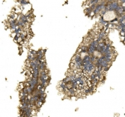 IHC staining of FFPE human renal cancer with Arginase 2 antibody. HIER: boil tissue sections in pH8 EDTA for 20 min and allow to cool before testing.
