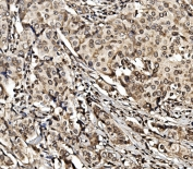 IHC staining of FFPE human breast cancer with HIF1A antibody. HIER: boil tissue sections in pH8 EDTA for 20 min and allow to cool before testing.