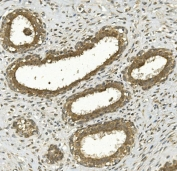 IHC staining of FFPE human breast cancer with NRF-2 antibody. HIER: boil tissue sections in pH8 EDTA for 20 min and allow to cool before testing.