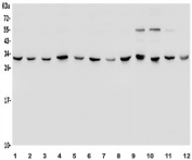 Western blot testing of human 1) HeLa, 2) Jurkat, 3) HepG2, 4) SH-SY5Y, 5) HEK293, 6) SW620, 7) A549, 8) Raji, 9) rat brain, 10) mouse brain, 11) mouse NIH 3T3 and 12) mouse RAW264.7 lysate with 14-3-3 epsilon antibody. Predicted molecular weight ~28 kDa.