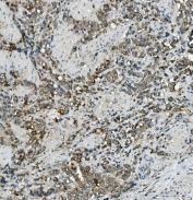 IHC staining of FFPE human gastric cancer with ABCC5 antibody. HIER: boil tissue sections in pH8 EDTA for 20 min and allow to cool before testing.