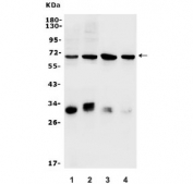 Western blot testing of rat 1) RH35, 2) C6 and mouse 3) HEPA1-6 and 4) Neuro-2a lysate with Arylsulfatase B antibody. Predicted molecular weight ~45 kDa but may be visualized at 60-70 kDa.