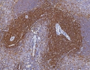 IHC staining of FFPE rat spleen with Cd2 antibody. HIER: boil tissue sections in pH8 EDTA for 20 min and allow to cool before testing.
