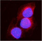 Immunofluorescent staining of FFPE human A431 cells with ACO1 antibody (red) and DAPI nuclear stain (blue). HIER: steam section in pH6 citrate buffer for 20 min.
