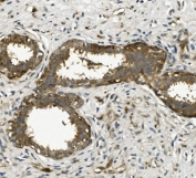 IHC staining of FFPE human breast cancer with ACTR2 antibody. HIER: boil tissue sections in pH8 EDTA for 20 min and allow to cool before testing.