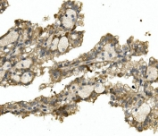 IHC staining of FFPE human renal cancer with ALAS1 antibody. HIER: boil tissue sections in pH8 EDTA for 20 min and allow to cool before testing.