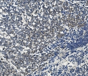 IHC staining of FFPE human lung cancer with AHR antibody. HIER: boil tissue sections in pH8 EDTA for 20 min and allow to cool before testing.