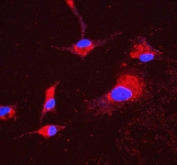Immunofluorescent staining of FFPE human A549 cells with ATP5H antibody (red) and DAPI nuclear stain (blue). HIER: steam section in pH6 citrate buffer for 20 min.