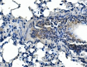 IHC staining of FFPE mouse lung tissue with Adam28 antibody. HIER: boil tissue sections in pH8 EDTA for 20 min and allow to cool before testing.