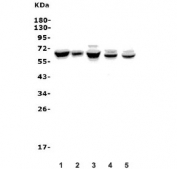 Western blot testing of human 1) SW620, 2) A549, 3) K562, 4) rat brain and 5) mouse spleen lysate with ANGPT2 antibody. Expected molecular weight: 57-70 kDa depending on glycosylation level.