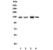 Western blot testing of human 1) HEK293, 2) K562, 3) PC-3 and 4) HeLa lysate with ATP11C antibody. Predicted molecular weight ~129 kDa.
