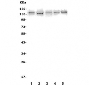 Western blot testing of human 1) A431, 2) U-2 OS, 3) U-87 MG, 4) PC-3 and 5) K562 lysate with AXL antibody. Expected molecular weight: 104-140 kDa depending on glycosylation level.