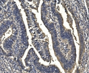 IHC staining of FFPE human rectal cancer with SORD antibody. HIER: boil tissue sections in pH8 EDTA for 20 min and allow to cool before testing.