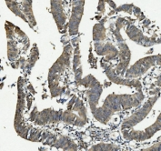 IHC staining of FFPE human rectal cancer with ANAPC2 antibody. HIER: boil tissue sections in pH8 EDTA for 20 min and allow to cool before testing.