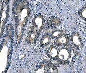 IHC staining of FFPE human colon cancer with Argininosuccinate Synthetase 1 antibody. HIER: boil tissue sections in pH8 EDTA for 20 min and allow to cool before testing.