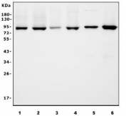 Western blot testing of human 1) HL60, 2) ThP-1, 3) PC-3, 4) HeLa, 5) rat brain and 6) mouse brain lysate with APPL1 antibody. Predicted molecular weight ~80 kDa.