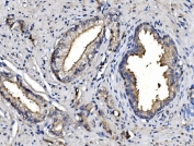 IHC staining of FFPE human prostate cancer with ANPEP antibody. HIER: boil tissue sections in pH8 EDTA for 20 min and allow to cool before testing.