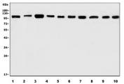 Western blot testing of 1) human Hela, 2) human SH-SY5Y, 3) human A431, 4) human U-87 MG, 5) rat brain, 6) rat lung, 7) rat stomach, 8) mouse brain, 9) mouse lung and 10) mouse stomach lysate with AFAP1 antibody. Predicted molecular weight ~120 kDa.