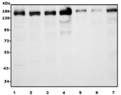 Western blot testing of human 1) HeLa, 2) HepG2, 3) Caco-2, 4) HEK293, 5) MDA-MB-453, 6) PANC-1 and 7) SW620 cell lysate with AFF4 antibody. Predicted molecular weight ~127/98/39 kDa (isoforms 1/2/3).