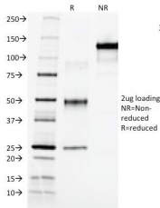 SDS-PAGE Analysis of Purified, BSA-Free AFP Antibody (clone C3). Confirmation of Integrity and Purity of the Antibody.