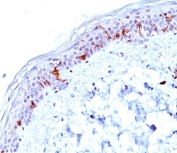 IHC testing of human skin stained with CD1a antibody (O10).