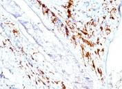 CD1a antibody immunohistochemistry