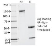 SDS-PAGE analysis of purified, BSA-free CD2 antibody (clone UMCD2) as confirmation of integrity and purity.