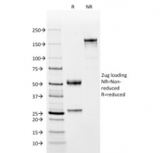 SDS-PAGE analysis of purified, BSA-free CD2 antibody (clone BH1) as confirmation of integrity and purity.