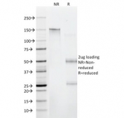 SDS-PAGE analysis of purified, BSA-free CD6 antibody (clone C6/372) as confirmation of integrity and purity.