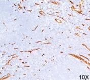 CD34 antibody QBEnd/10 immunohistochemistry 10X