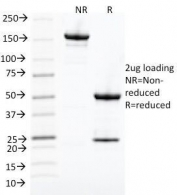 SDS-PAGE Analysis of Purified, BSA-Free CDK1 Antibody (clone POH-1). Confirmation of Integrity and Purity of the Antibody.