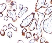 HCG-beta antibody HCGb/54 immunohistochemistry