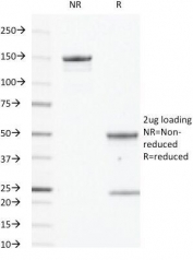 SDS-PAGE analysis of purified, BSA-free EGFR antibody (clone GFR450) as confirmation of integrity and purity.