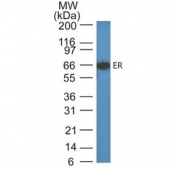Western blot testing of human MCF7 cell lysate with Estrogen Receptor antibody (ER505). Predicted molecular weight ~67 kDa.