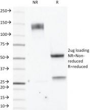 SDS-PAGE analysis of purified, BSA-free Estrogen Receptor beta antibody (clone ERb455) as confirmation of integrity and purity.