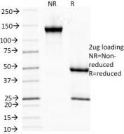 SDS-PAGE analysis of purified, BSA-free HSP27 antibody (clone G3.1) as confirmation of integrity and purity.